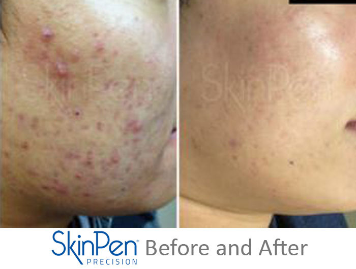 SkinPen Before and After 3